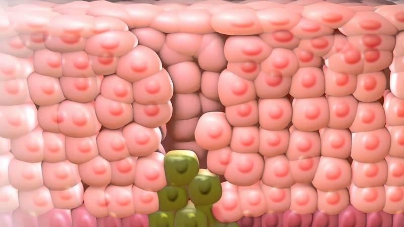 Самые читаемые статьи: Как избавиться от маленьких бородавок на теле