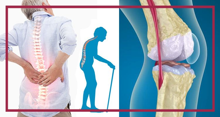 Как лечат остеопороз в германии